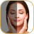 icon Pimple Eraser 1.4.9